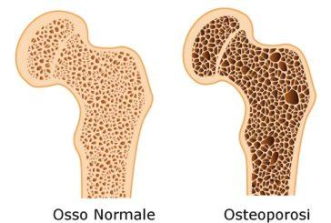Osteoporosi: ambulatorio dedicato a Borgosesia