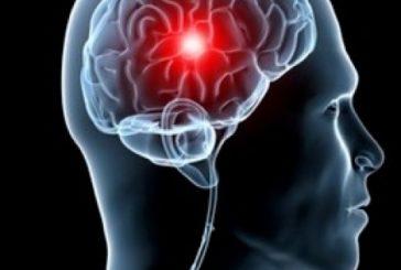 Ictus cerebrale. Grandi novità scientifiche dal congresso Esoc 2019 di Milano