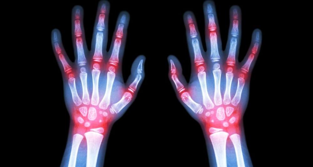 Artrite reumatoide va di pari passo con altre 11 malattie
