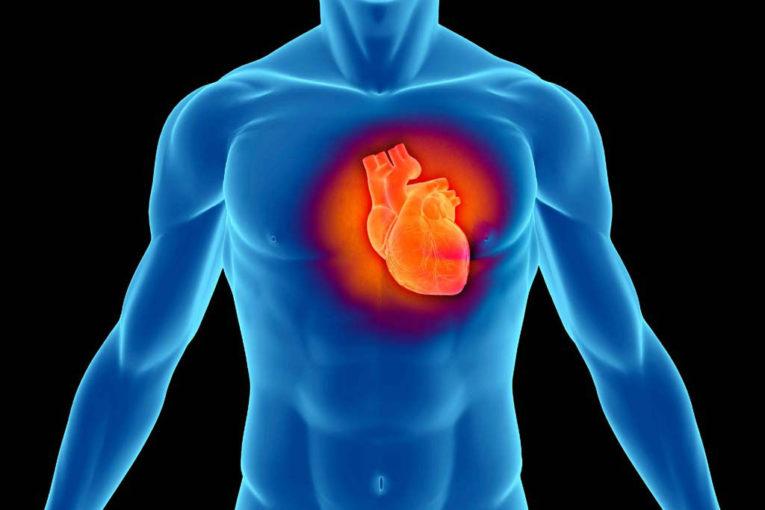 aritmia ventricolare