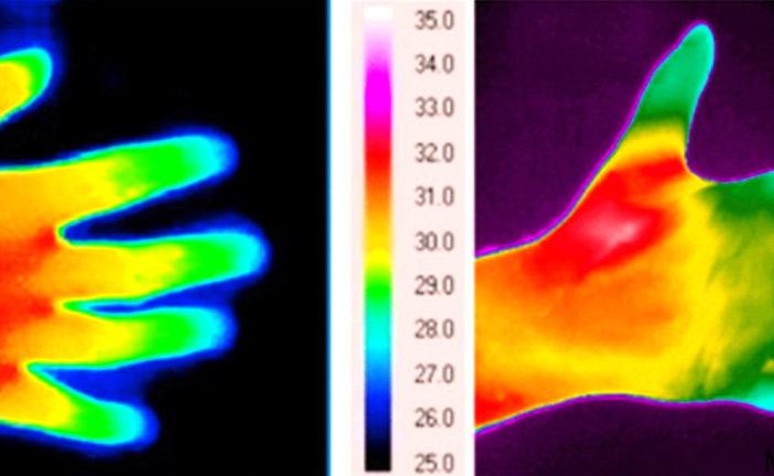 Freddo, poca luce, movimento e sonno. I malati reumatici in inverno soffrono di più