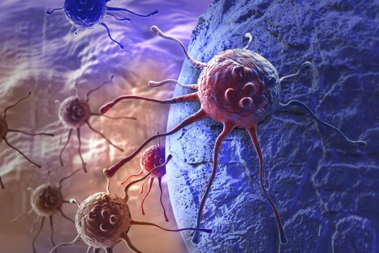 I tumori si nascondono