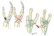 Rizoartrosi: trattamento conservativo vs intervento chirurgico