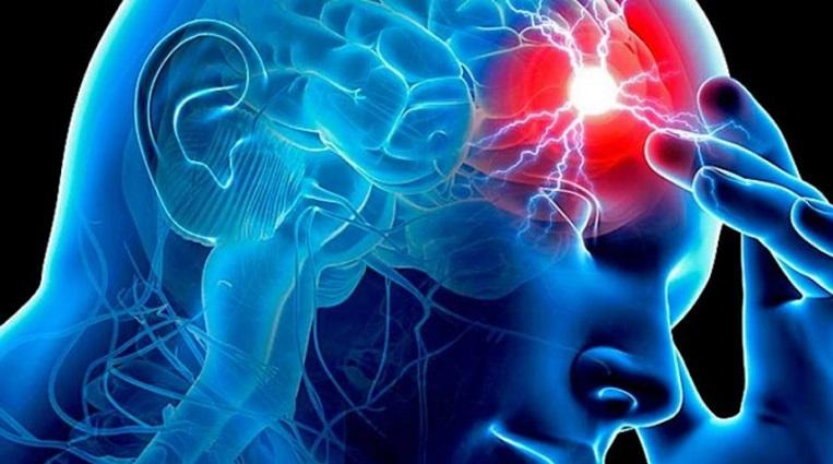 Ictus-cerebrale
