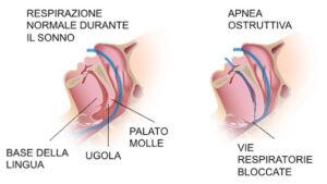 apnea ostruttiva - incidenti automobilistici - polisonnografia - agnoletti 2