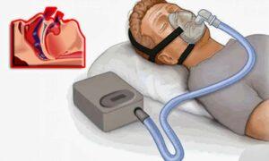 apnea ostruttiva - incidenti automobilistici - polisonnografia - agnoletti 9