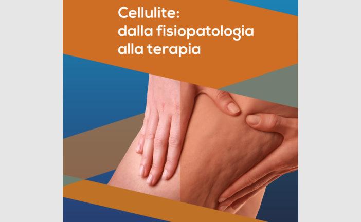 Cellulite: dalla fisiopatologia alla terapia