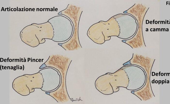 Patologie dell'anca: il conflitto Femoro-Acetabolare