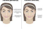 La paralisi del VII nervo cranico: dalla diagnosi alla riabilitazione