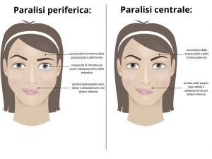 paralisi del VII nervo cranico - paralisi periferica - paralisi centrale - fig 1