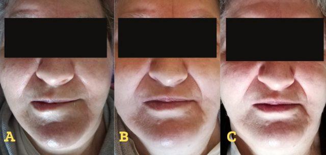 paralisi del VII nervo cranico - paziente con diagnosi di schwannoma fig 4